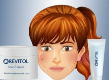Revitol Scar Removal Cream